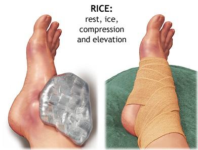 First aid - Sprain